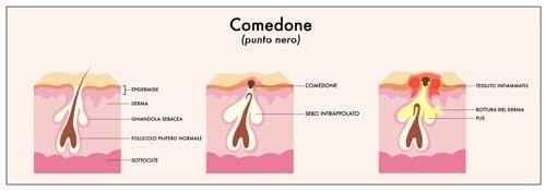טיפול טבעי בפצעי אקנה - מבנה הקומודונים - לבנדר קוסמטיקה טבעית