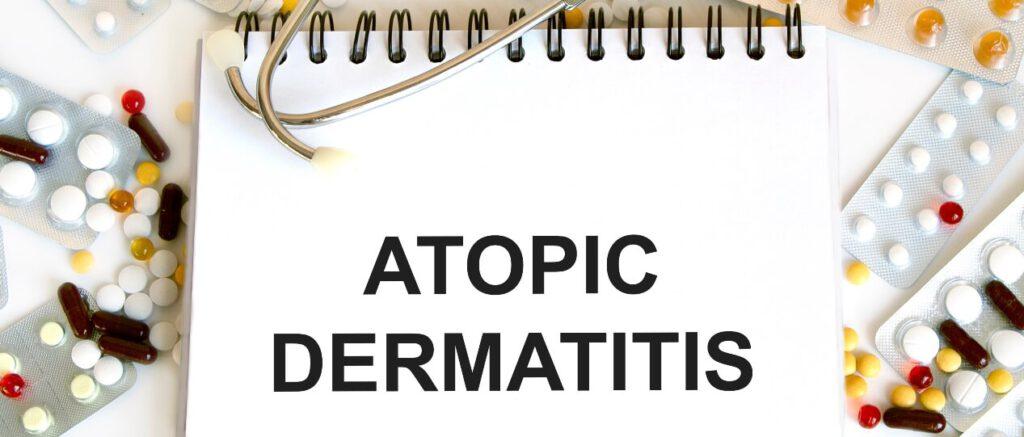 אטופיק דרמטיטיס טיפול טבעי - לבנדר קוסמטיקה טבעית
