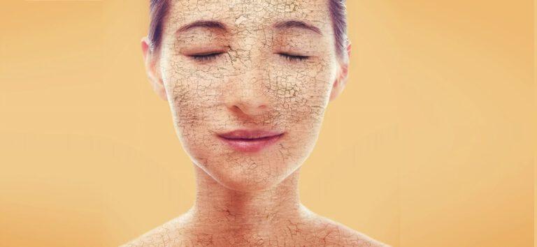 עור יבש - טיפול טבעי - לבנדר קוסמטיקה טבעית