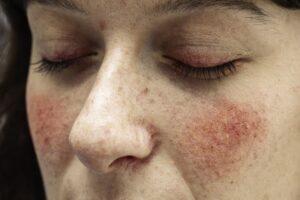 תמונה של פנים עם רוזציאה - מאמר על סימפטומים וסיבות לרוזציאה